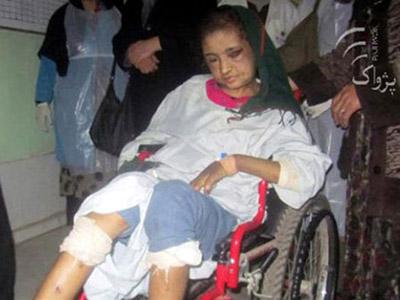15-летнюю девочку изуродовала семья ее мужа