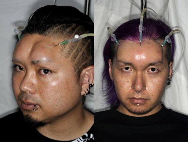 Японская мода на шишки на лбу