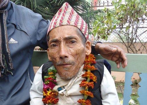 Чандра Бахадур Данги - самый маленький человек