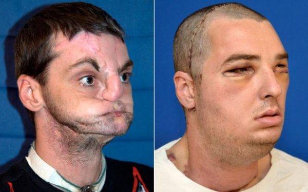 Пересадка лица
