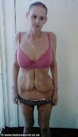 От ожирения до анорексии - один шаг