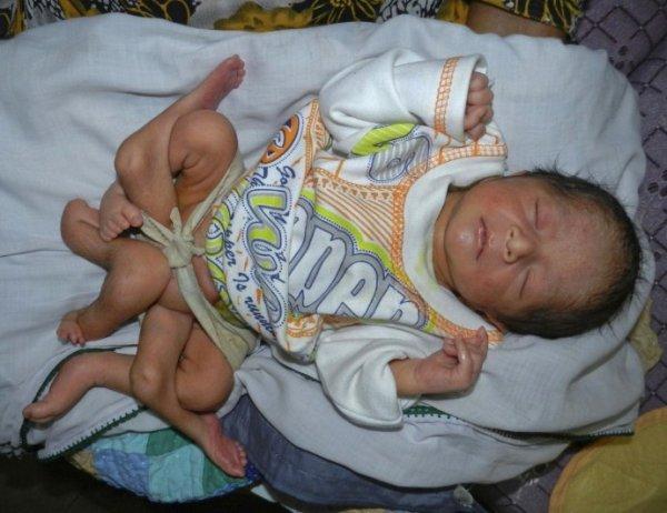 Шестиногий ребенок родился в Пакистане