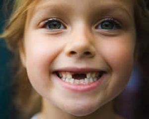 Череп ребёнка до выпадения молочных зубов