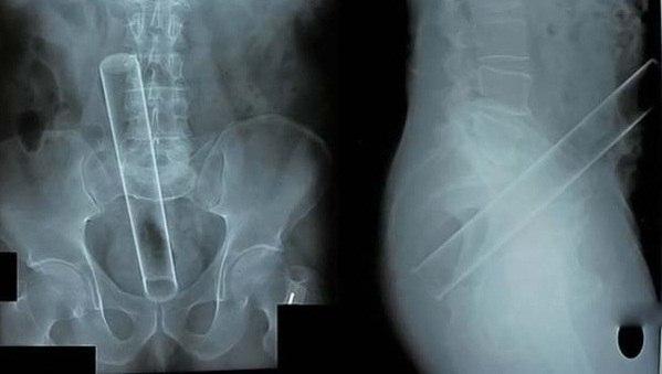 Рентгеновские снимки. Не совсем типичные случаи.