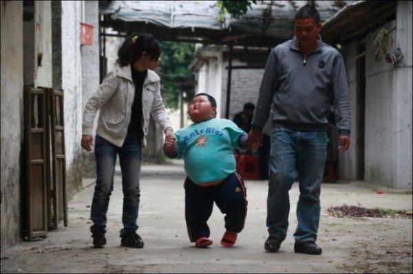 3-х летний ребенок из Китая весит 60 килограмм