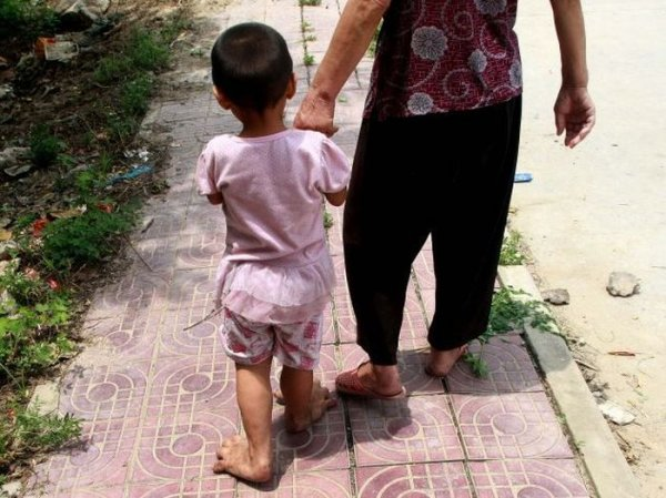 Девочка-бигфут из Китая