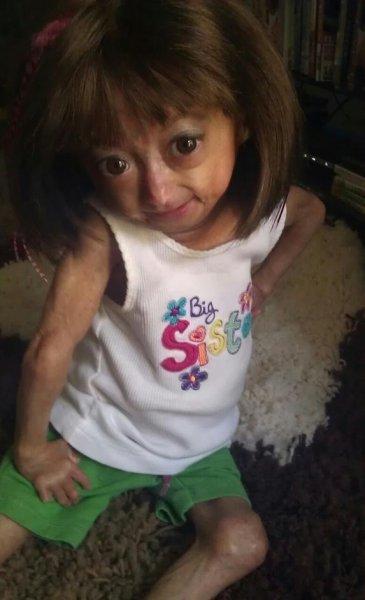 Родители, больной ребенок и фотографии