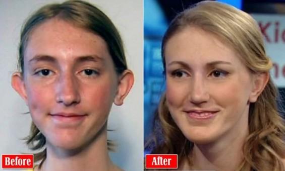 14-летняя собрала $40000 на пластическую операцию