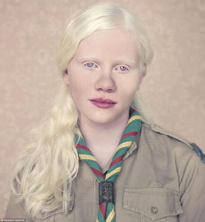 фото людей альбиносы