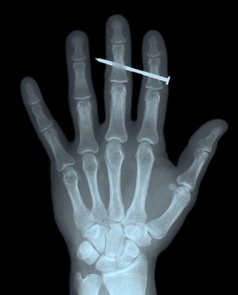 20 жесточайших рентгеновских снимков