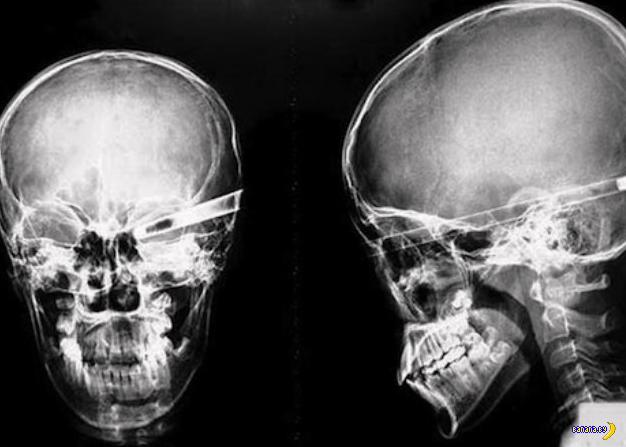 Свежие ужасы с рентгеновских снимков