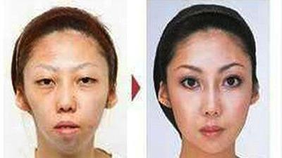Китаец засудил экс-жену за ложь о пластике