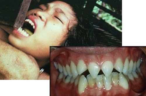 Зубная мода