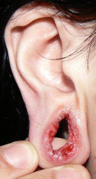 """Что будет с ухом, если """"растоннелиться""""?"""