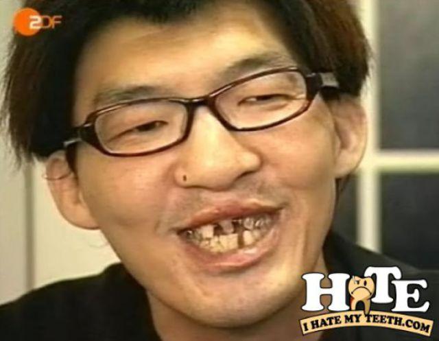 Я ненавижу свои зубы!