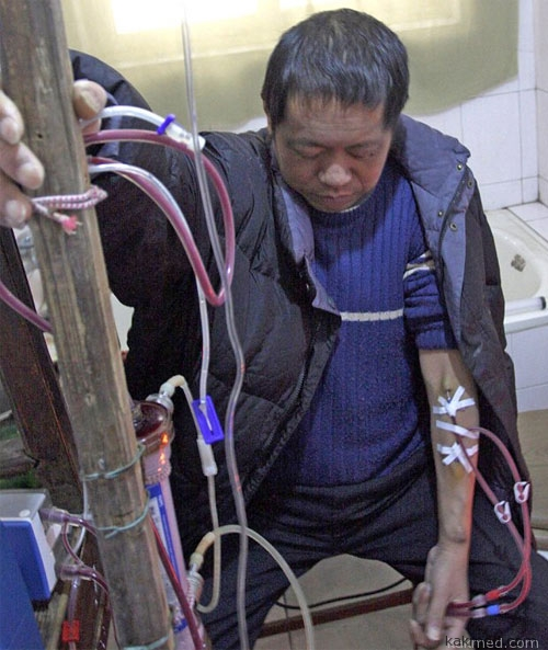 Китайский крестьянин живет 13 лет на самодельной искусственной почке