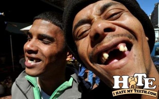 Жители ЮАР удаляют себе передние зубы, следуя современной моде