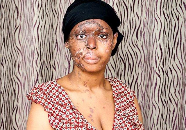 Неизвестная в хиджабе плеснула кислотой в лицо девушке из Лондона