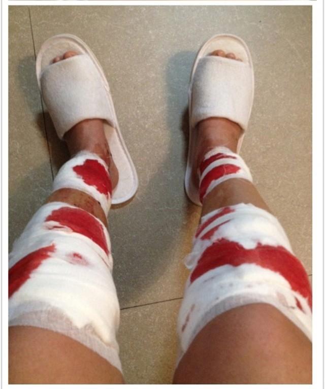 Для красоты ей ноги переломали