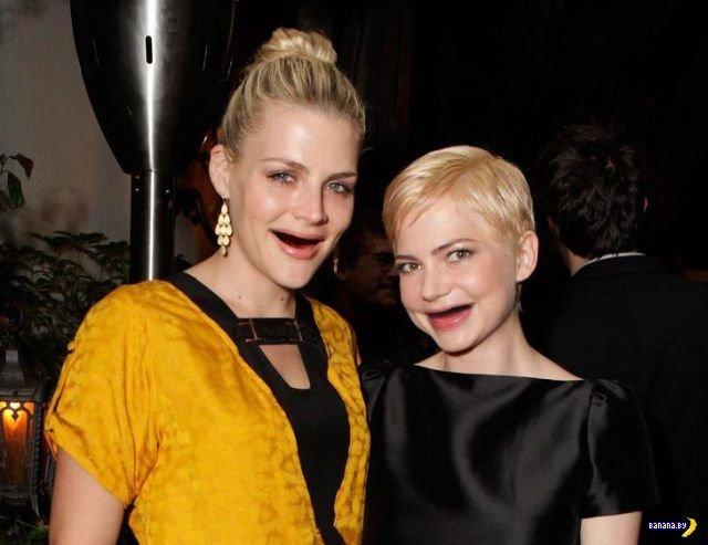 Беззубые актрисы из Голливуда