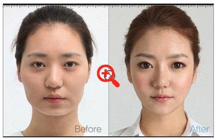 Пластическая хирургия в Южной Корее
