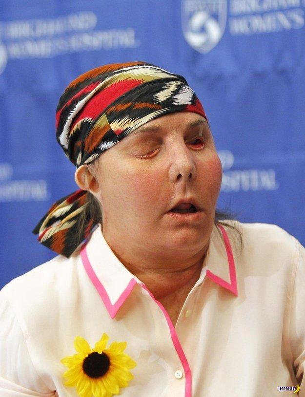 История женщины с пересаженным лицом