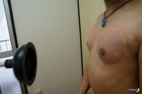 Можно ли увеличить грудь с помощью вантуза?