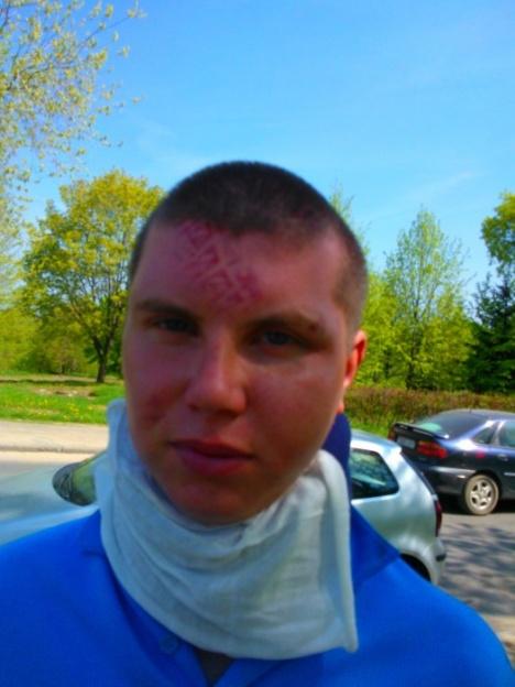 """По факту избиения минчанина в """"Короне"""" возбуждено уголовное дело"""