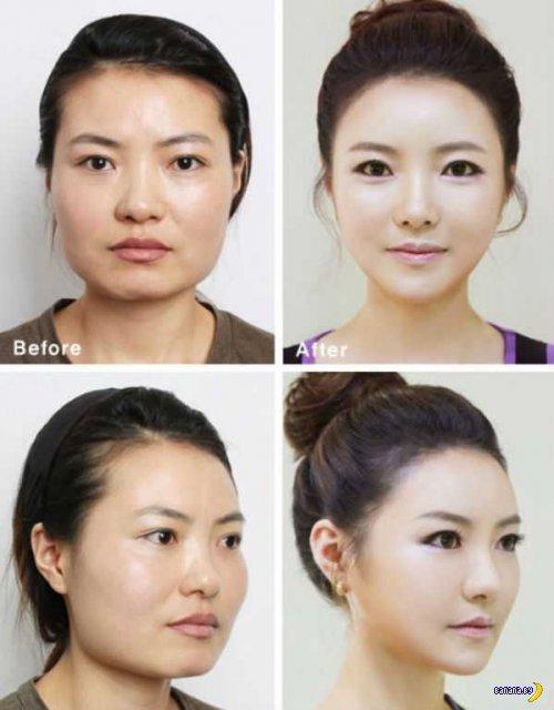 Кореянкам рекомендуют ломать челюсти во имя красоты