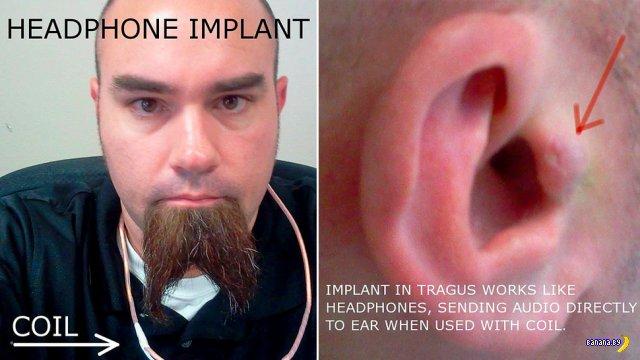 Имплантировал наушник себе в ухо