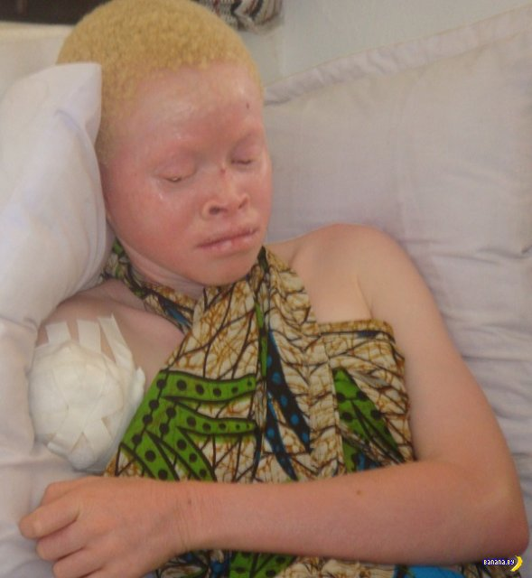 За что альбиносов  рубят на куски