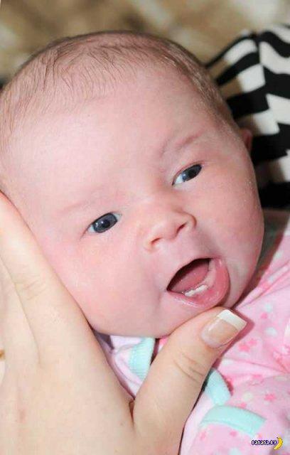 Мать отказалась кормить грудью зубастую новорожденную