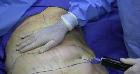 Первые пластические операции