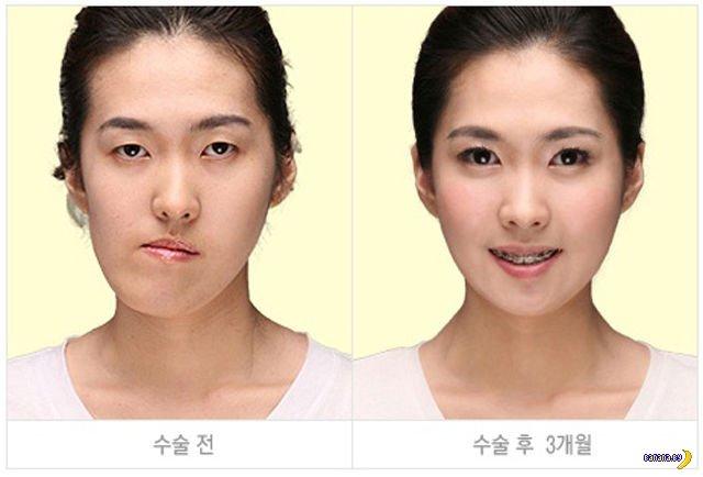 Пластическая хирургия в Корее: до и после