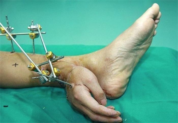 Чтобы спасти человеку руку ее пришили к ноге