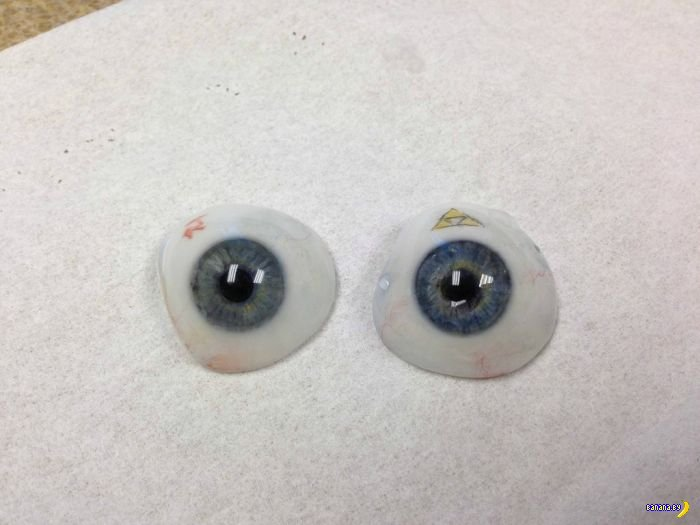 Как делаются протезы глазного яблока