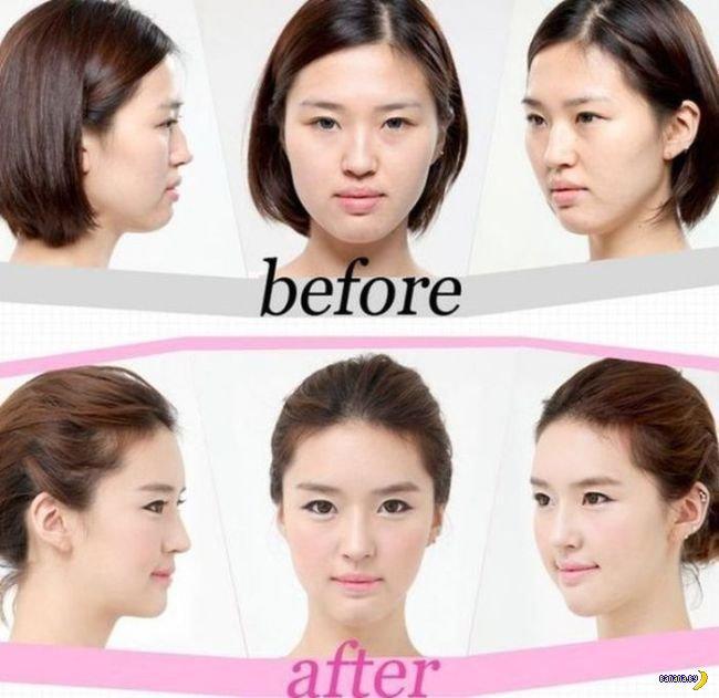Корейская пластика - до и после