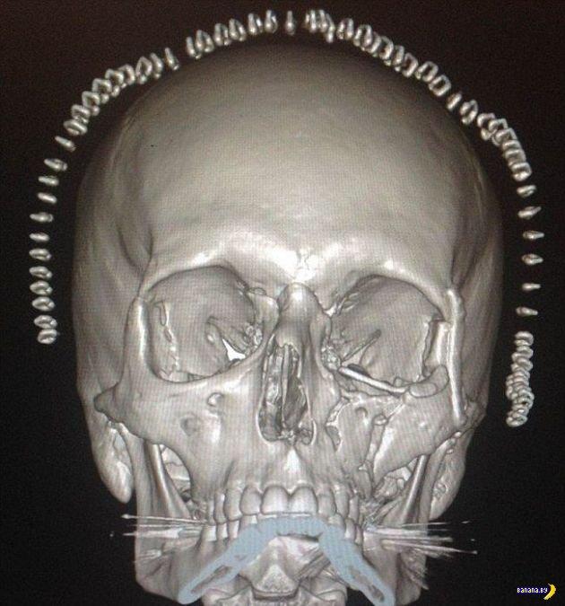 Распечатали парню череп