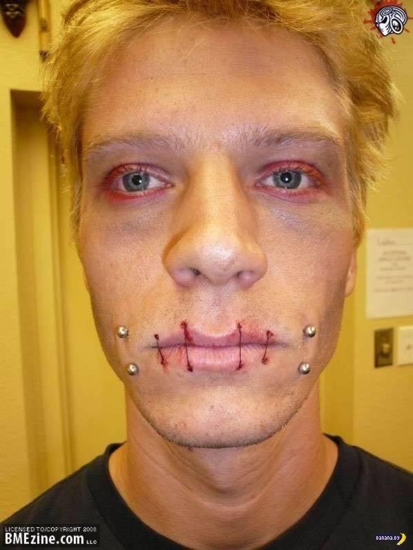 Дырки и металл в районе рта