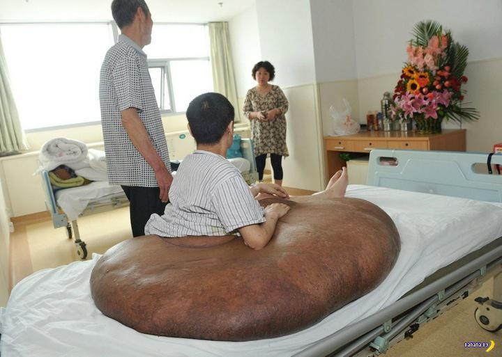 Мужчине удалили самую большую в мире опухоль