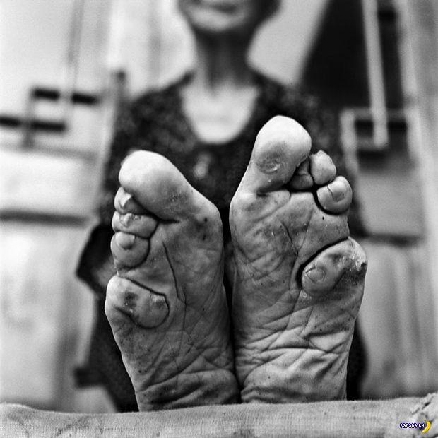 Конец китайской моде на миниатюрные ступни
