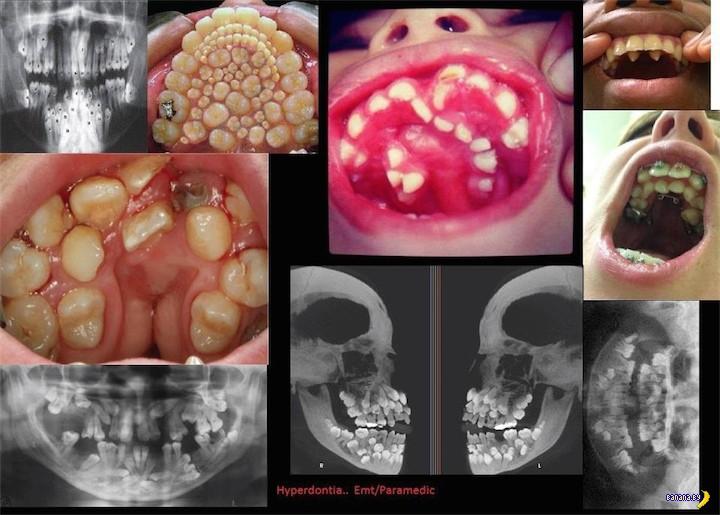 232 зуба и гипердонтия