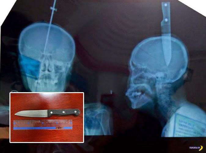 Женщина пришла в больницу с ножом в голове