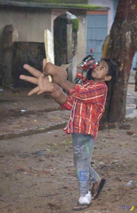Мальчик с огромными руками