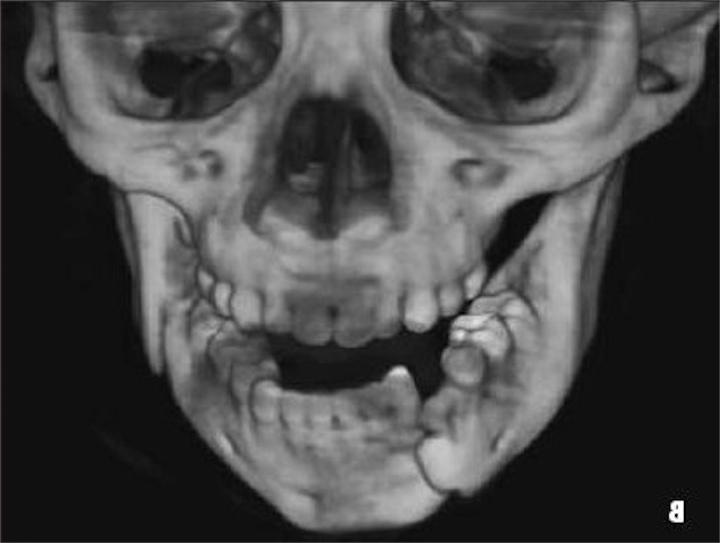 Открытия, сделанные благодаря сломанной челюсти