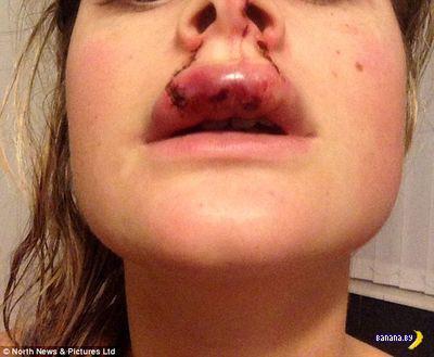 Не нежное покусывание за губу