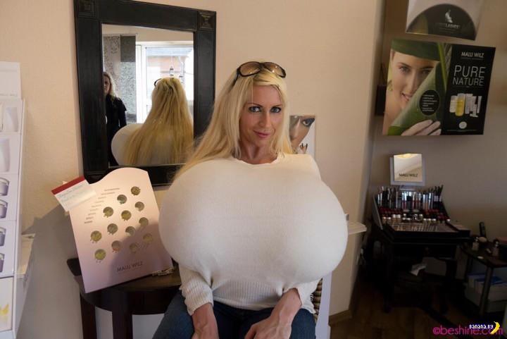 Это самая большая ненатуральная грудь в мире