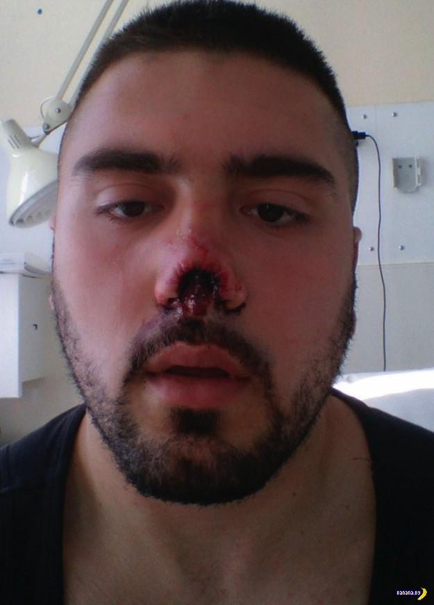 Новый нос для боксёра