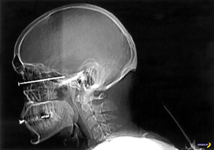 Коллекция лучших рентгеновских снимков
