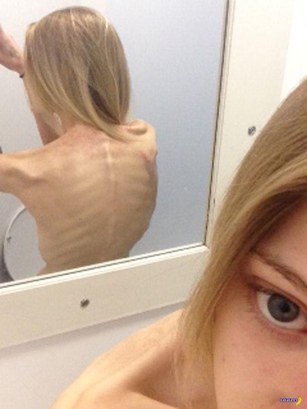 Раскрыли подпольную сеть анорексичек